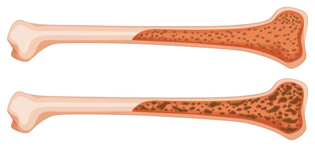 10 lucruri despre osteoporoză
